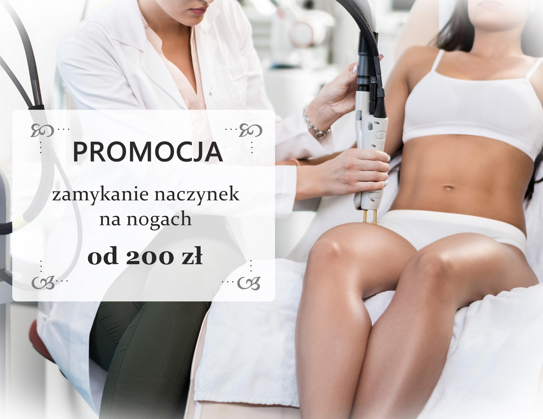 zamykanie-naczynek-promocja-facebook